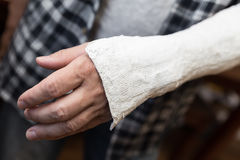 Man with injured arm. Is incapacitated royalty free stock image