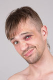 Man with an injured eye. Closeup Stock Photos