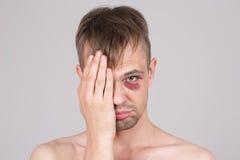 Man with an injured eye. Closeup Royalty Free Stock Photography