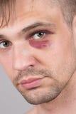 Man with an injured eye. Closeup Royalty Free Stock Image