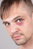 Man with an injured eye. Closeup Royalty Free Stock Images