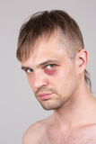 Man with an injured eye. Closeup Royalty Free Stock Images