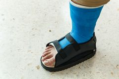 Man injury as foot Stock Photos