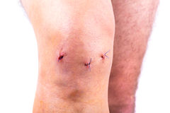 Man knee after arthroscopic surgery. With stitches Royalty Free Stock Images