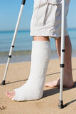 Man with leg plaster at a beach. Trying to walk stock image