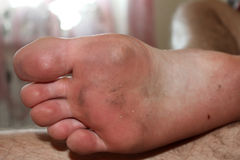 Man lies with dirty feet. Royalty Free Stock Photos