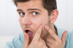 Man Looking At Pimple On Forehead. Shocked Young Man Looking At Pimple On Forehead stock photography