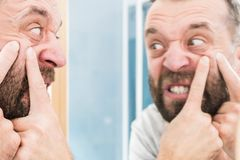 Man looking at pimples on his face. Adult man investigating his pimples on face. Guy trying to get rid of pimple squeezing it royalty free stock photo