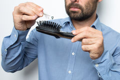Man losing hair Stock Photo