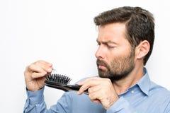 Man losing hair royalty free stock image