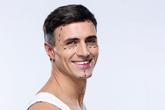 Man marked with lines for plastic surgery. Happy man marked with lines for plastic surgery stock photo