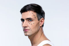 Man marked with lines for plastic surgery. Looking away stock photos