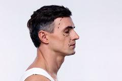 Man marked with lines for plastic surgery. Side view portrait of a man marked with lines for plastic surgery royalty free stock images