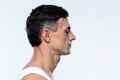 Man marked with lines for plastic surgery Stock Photography