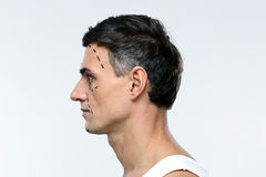 Man marked with lines for plastic surgery Royalty Free Stock Photo