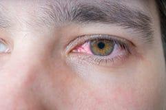 Man med det röda sårade ögat royaltyfri fotografi