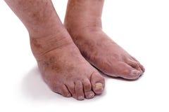 Man med en diagnos av polyarthritis Fotografering för Bildbyråer