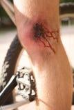Man med en sår på hans knä royaltyfri fotografi