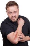 Man med ett ärr på hans arm fotografering för bildbyråer