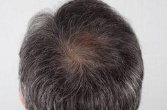Man med hårförlust och grå färghår royaltyfri bild
