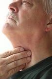 Man med handen på halsen Arkivbild