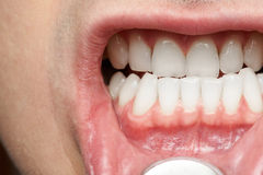 Man mouth with healthy teeth Royalty Free Stock Image