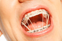 Man mouth with latex rings on braces Royalty Free Stock Photo
