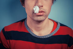 Man with nose bleed and cold sores. Young man with tissue in his nostril has nose bleed as well as cold sores on his lip Stock Photo