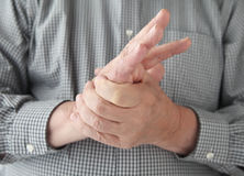 Man with numbness in hand royalty free stock image