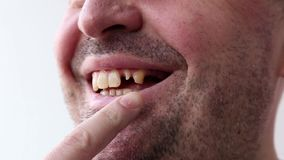 Man open his mouth and points by finger at his bad broken teeth close-up on white background. Man open his mouth and points by finger at his bad broken teeth stock video footage