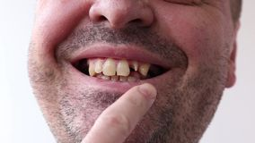 Man open his mouth and points by finger at his bad broken teeth close-up on white background. Man open his mouth and points by finger at his bad broken teeth stock video