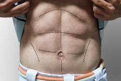 Man with 6 packs line on his abs. For body plastic surgery concept Royalty Free Stock Photo
