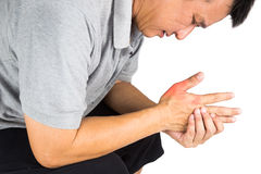 Man with painful and inflamed gout on his hand around the thumb area Royalty Free Stock Photos