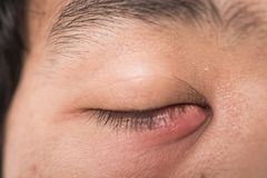 The man painfully eye stye. Ophthalmic hordeolum virus disease Royalty Free Stock Photography
