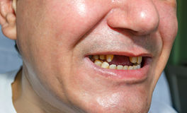Man without and peeled teeth Royalty Free Stock Photos