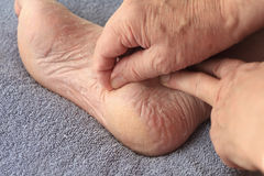 A man peeling dry skin from his foot Stock Photography