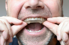 Man placing a bite plate in his mouth. To protect his teeth at night from grinding caused by bruxism, close up view of his hand and the appliance stock photo
