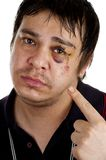 Man pointing at his black eye. Isolated on white back ground stock image