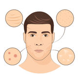 Man portrait with facial treatments. Face skin care vector illustration. Facial skin defect rashes, wrinkle and irritation Stock Photos