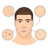 Man portrait with facial treatments. Face skin care vector illustration Stock Photos