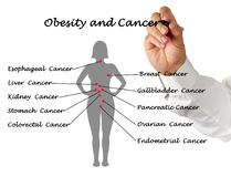 Obesity and Cancer. Man presenting relationship between Obesity and Cancer Royalty Free Stock Photos