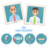 Man before and after PRP treatment. Photographs of a man before and after PRP treatment. Platelet rich plasma procedure stages. Male hair loss design template Stock Images