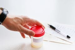 A man puts a medical container with semen analysis labeled, next to the completed form, on a white background. Donor sperm for royalty free stock photos