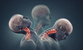 Man x-ray with neck bones highlighted. 3d render royalty free stock images