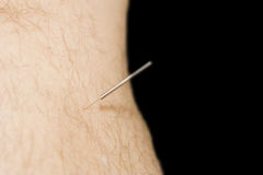 Man receiving acupuncture to leg Stock Image