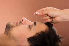 Man Receiving Acupuncture Treatment. Close-up Of A Man Receiving Acupuncture Treatment In Beauty Spa Stock Photos