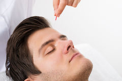 Man Receiving Acupuncture Treatment Stock Photos