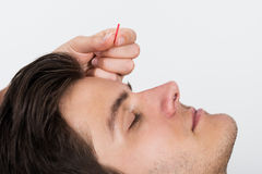 Man Receiving Acupuncture Treatment Royalty Free Stock Photos