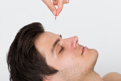 Man Receiving Acupuncture Treatment Royalty Free Stock Image