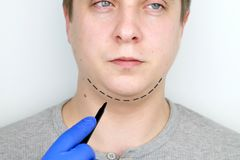 Chin lift - mentoplasty. A man at the reception at the plastic surgeon. Preparation for surgery royalty free stock photos